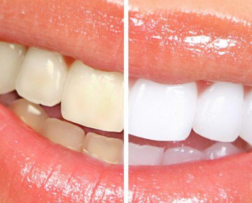 Odstranjevanje vseh zabarvanj zob