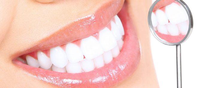 Odstranjevanje zobnega kamna