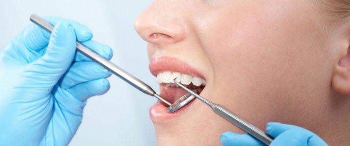 Parodontološki pregled