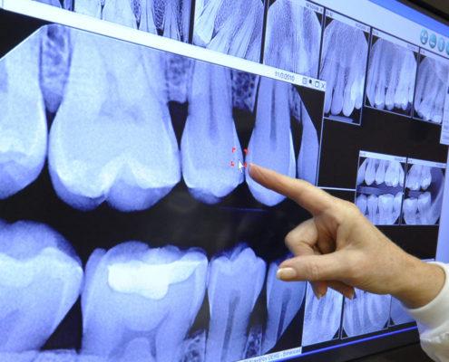 Slikanje zob - zobni rentgen